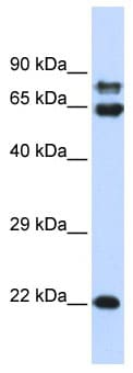 Western blot - PPP2R1A antibody (ab86406)