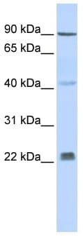 Western blot - Insig2 antibody (ab86415)