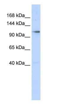 Western blot - Zinc finger MIZ domain-containing protein 1 antibody (ab86421)