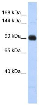 Western blot - Matrilin 2 antibody (ab86439)