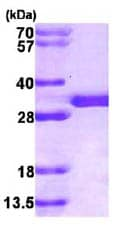 SDS-PAGE - SPR protein (His tag) (ab86445)