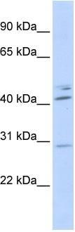 Western blot - Spic antibody (ab86499)
