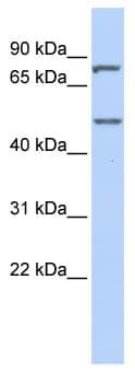 Western blot - ZNF252 antibody (ab86533)