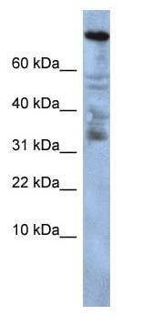 Western blot - Zinc finger protein 251 antibody (ab86535)
