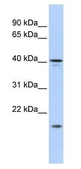 Western blot - SLAIN1 antibody (ab86536)