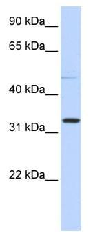 Western blot - NEU4 antibody (ab86539)