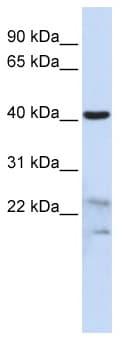 Western blot - SCRN2 antibody (ab86567)