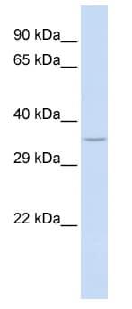 Western blot - SPDYA antibody (ab86568)