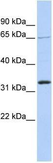 Western blot - GRHL2 antibody (ab86611)