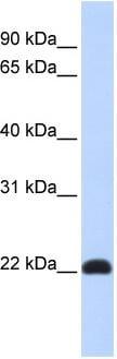 Western blot - KLF16 antibody (ab86612)