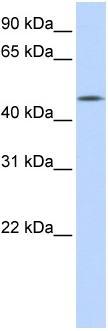Western blot - C20orf160 antibody (ab86615)