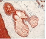 Immunohistochemistry (Formalin/PFA-fixed paraffin-embedded sections) - pan Cytokeratin antibody [AE1/AE3 + 5D3] (ab86734)