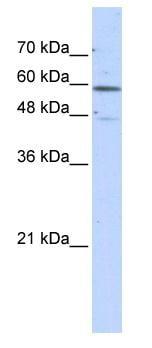 Western blot - GLUD2 antibody (ab86966)