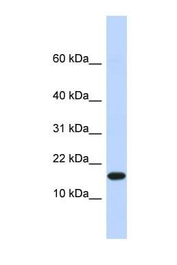 Western blot - PHD1/prolyl hydroxylase antibody (ab86980)