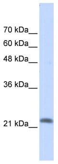 Western blot - RASL10A antibody (ab86981)