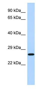 Western blot - EFHD2 antibody (ab87006)