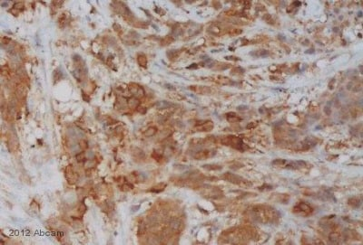 Immunohistochemistry (Formalin/PFA-fixed paraffin-embedded sections) - Anti-HSD17B14 antibody (ab87011)
