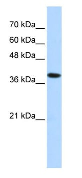 Western blot - Anti-Hydrogen Potassium ATPase Beta antibody (ab87031)
