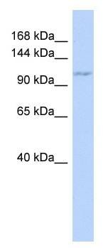 Western blot - ZC3H7B antibody (ab87053)