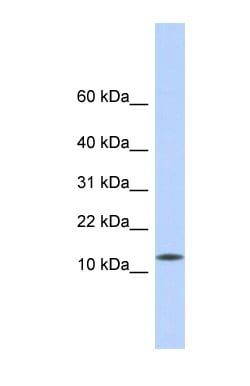 Western blot - CDRT4 antibody (ab87080)