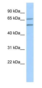 Western blot - ZNF570 antibody (ab87088)