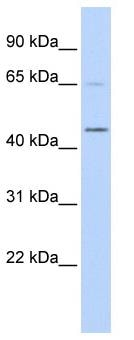Western blot - MBD2 Interacting Zinc Finger MIZF antibody (ab87095)
