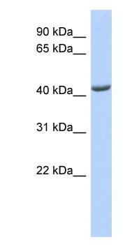 Western blot - ST3GAL4 antibody (ab87114)
