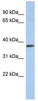 Western blot - Calreticulin 3 antibody (ab87139)