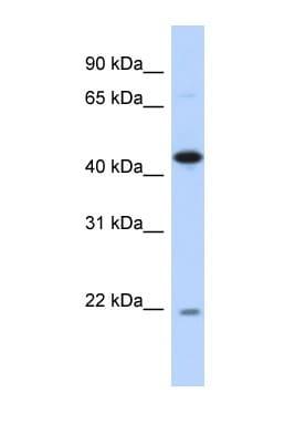 Western blot - NOB1 antibody (ab87151)