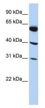 Western blot - LYSMD4 antibody (ab87162)