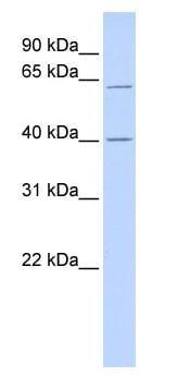 Western blot - TRIT1 antibody (ab87166)