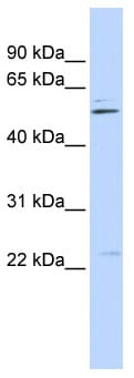 Western blot - TRIM35 antibody (ab87169)