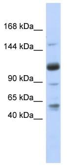 Western blot - SR140 antibody (ab87191)