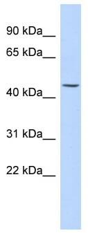 Western blot - KRT24 antibody (ab87195)