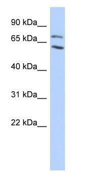 Western blot - MTA2 antibody (ab87204)