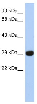 Western blot - Anti-Ketosamine-3-kinase antibody (ab87219)