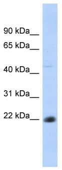 Western blot - CD40 antibody (ab87233)