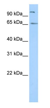 Western blot - SPATA16 antibody (ab87238)