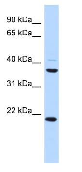 Western blot - TMEM74 antibody (ab87239)