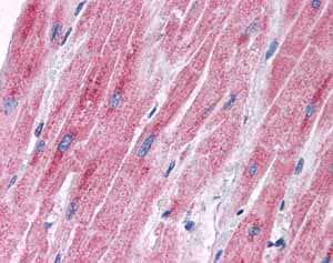 Immunohistochemistry (Formalin/PFA-fixed paraffin-embedded sections)-Anti-PDK2 antibody(ab87243)