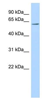 Western blot - TMEM209 antibody (ab87248)