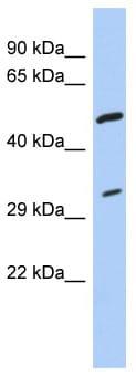 Western blot - Tropomyosin 3 antibody (ab87258)