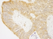 Immunohistochemistry (Formalin/PFA-fixed paraffin-embedded sections) - c Abl antibody (ab87267)