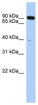 Western blot - CGBP antibody (ab87288)