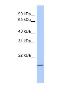 Western blot - CLECL1 antibody (ab87297)