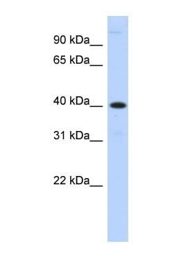 Western blot - MPPE1 antibody (ab87298)