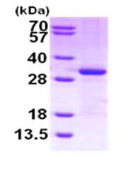 SDS-PAGE - CITED2 protein (His tag) (ab87363)