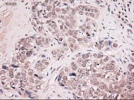 Immunohistochemistry (Formalin/PFA-fixed paraffin-embedded sections) - Neurotrophin 4 antibody [2E8] (ab87394)