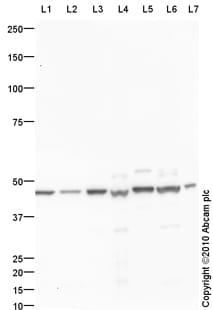 Western blot - Anti-JNK3 antibody (ab87404)