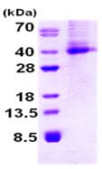 SDS-PAGE - DKK1 protein (His tag) (ab87416)